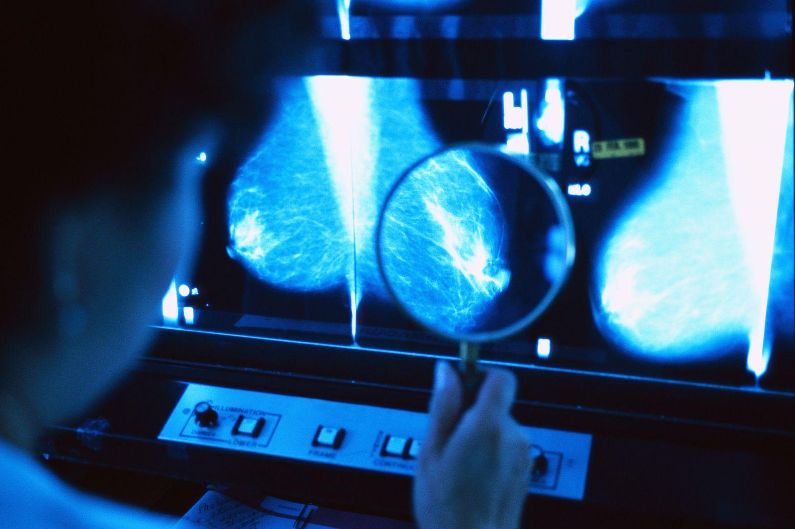 NICHT MEHR VERWENDEN! - Mammographie