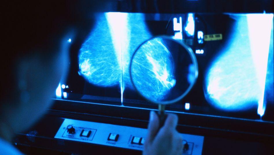 Arzt untersucht Mammografiebild: Kein Nutzen durch jährliche Früherkennung