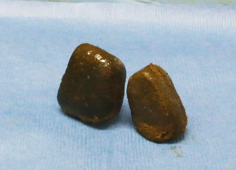 Würfel-Kacke von Wombats