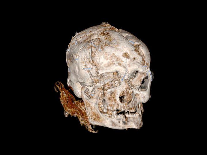 CT-Scan offenbart grausige Details: Worsley Man wurde geschlagen, stranguliert, geköpft