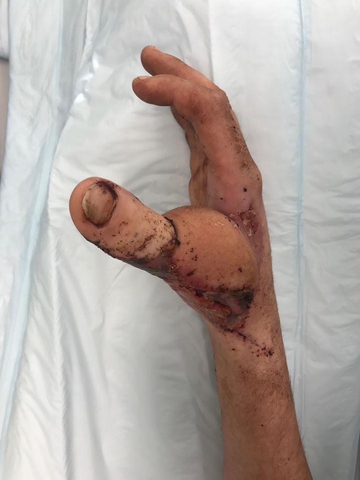 Der transplantierte Finger-Zeh