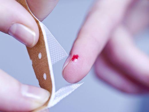 Eine Blutvergiftung kann durch eine Wunde entstehen. Es gibt aber auch andere Möglichkeiten für eine Sepsis