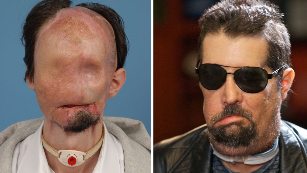 Photo Gallery: Surviving a Full Face Transplant