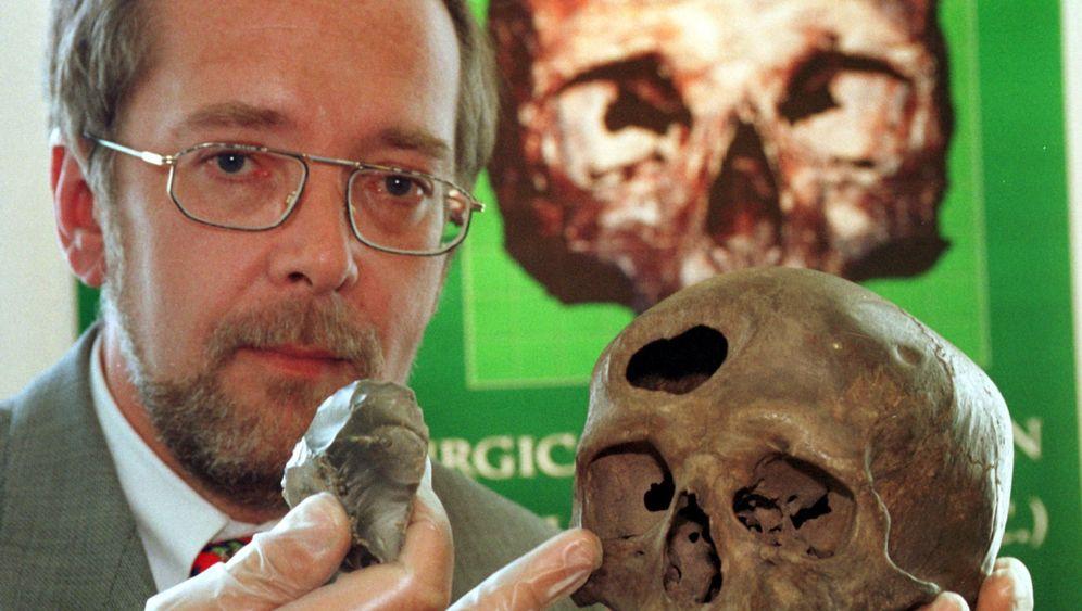 Archäologie: Loch im Kopf