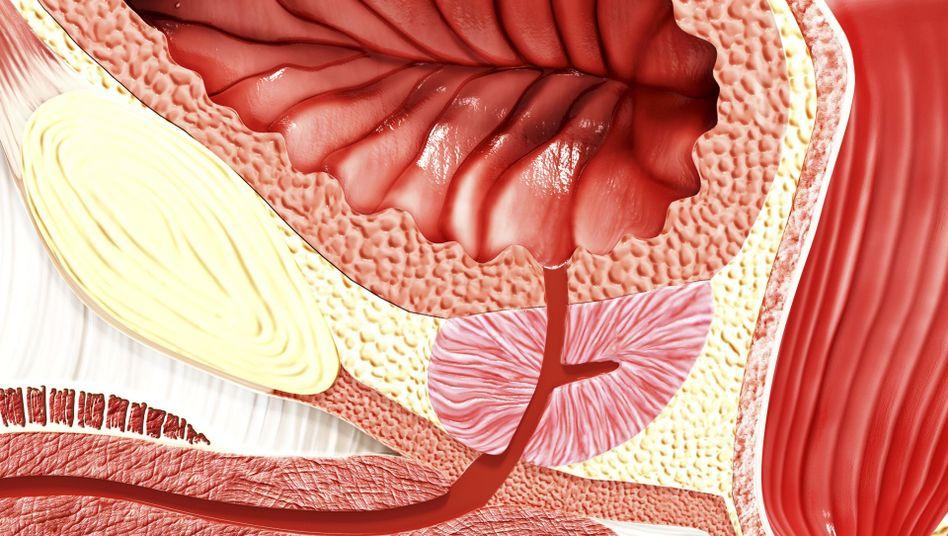 Vergrößerte Prostata (Illustration): Die eigentlich etwa kastaniengroße Drüse liegt unter der Blase