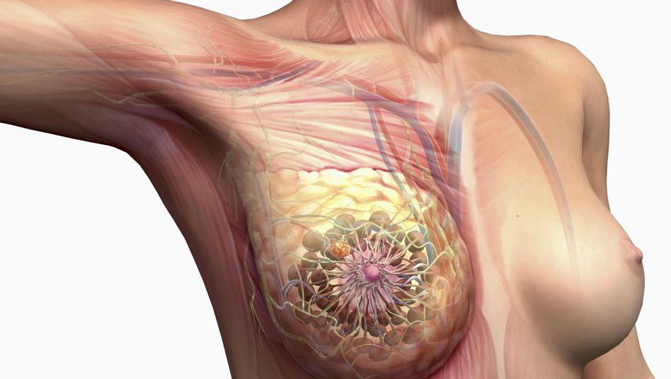 Illustration der Brust: Bei Krebs werden befallene Lymphknoten häufig entfernt