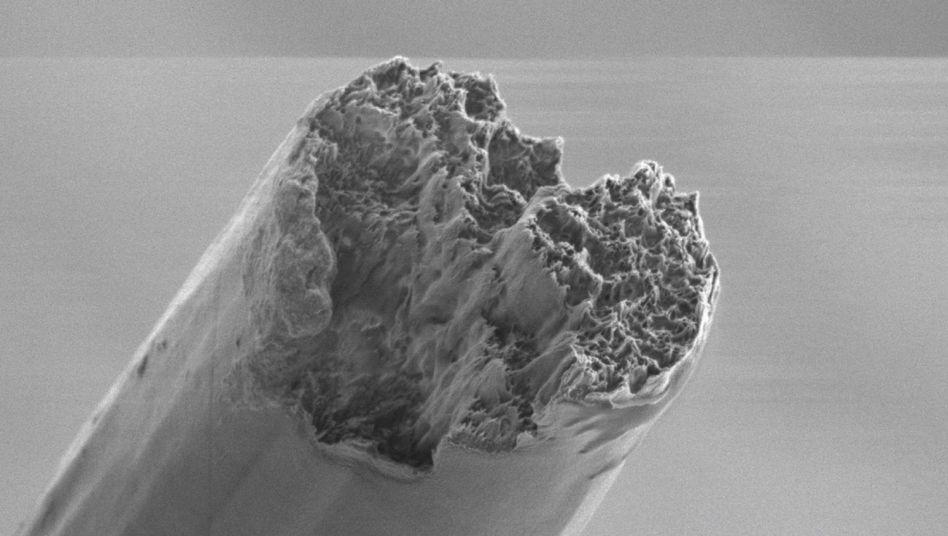 Bild aus dem Rasterelektronenmikroskop