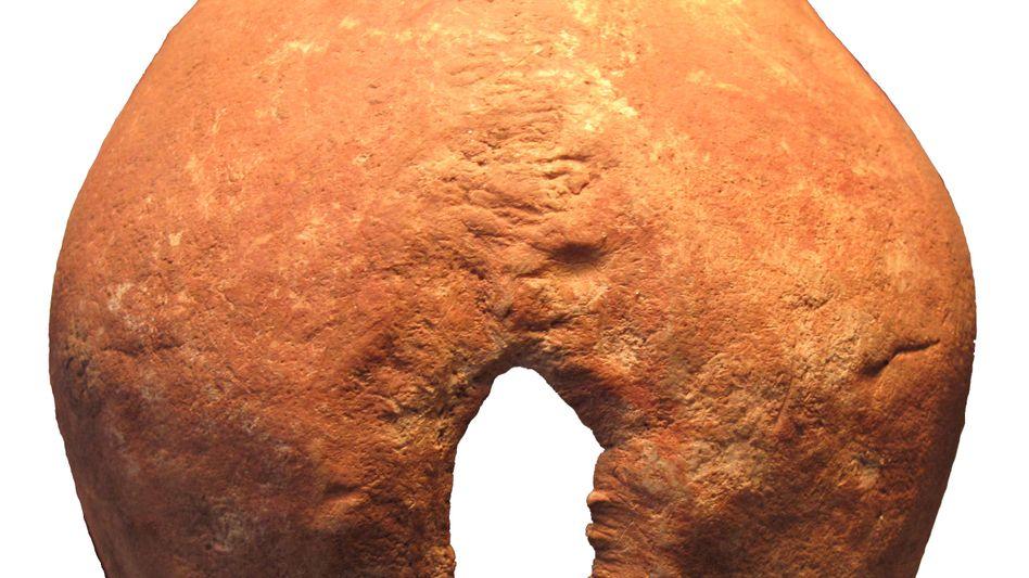 Chirurgische Schädelöffnung aus der Bronzezeit