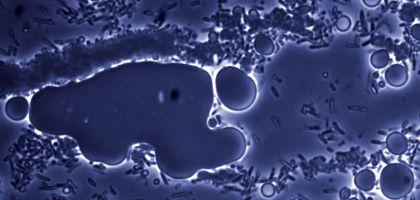 E.-Coli-Bakterien: Aus Pflanzenabfällen Öl herstellen