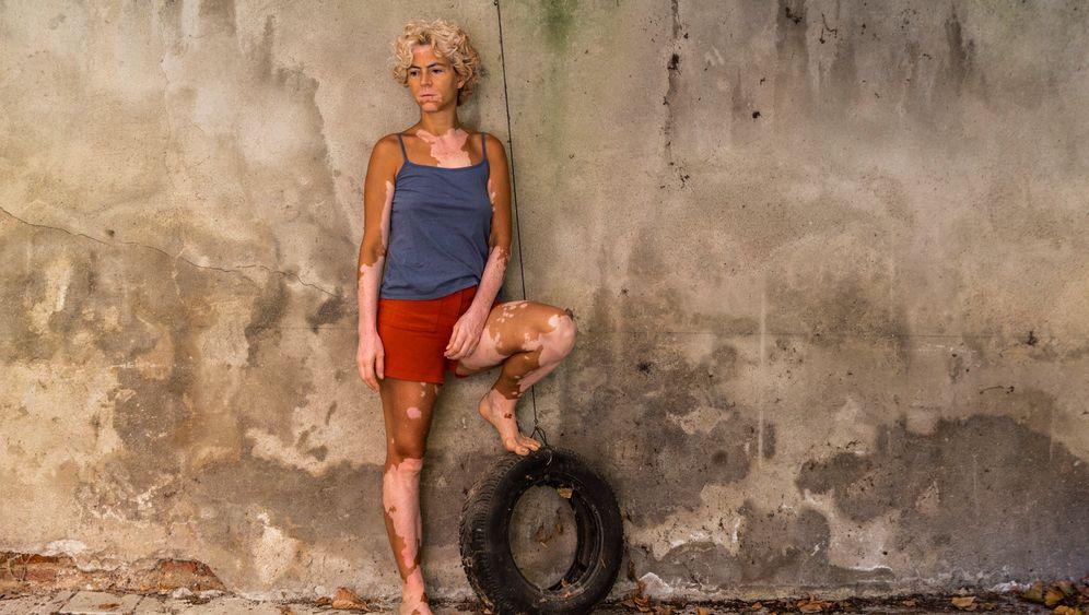 70 Prozent von Mariagiovannas Haut sind mit Vitiligo bedeckt.