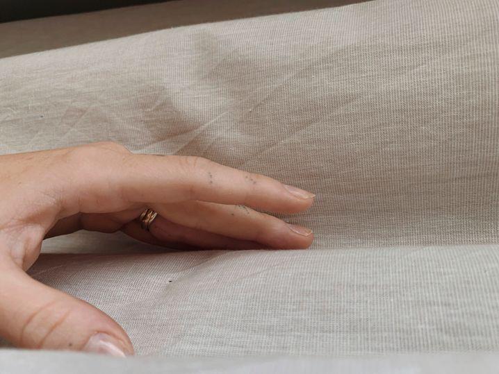 Milewskis Hand zieren einige schwarze Punkte