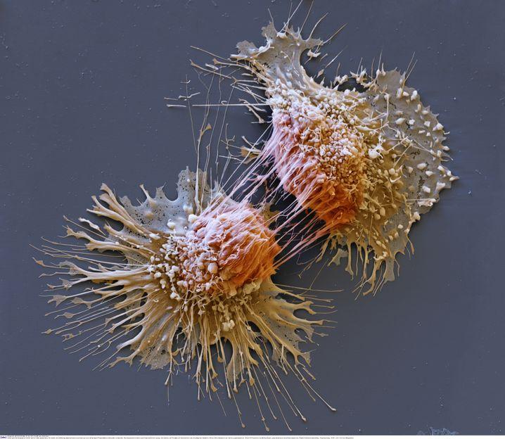 Lungentumorzellen unter Elektronenmikroskop