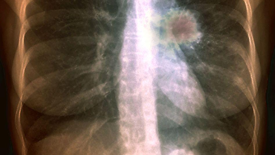 Radon zerfällt nach dem Einatmen in der Lunge, wobei radioaktive Strahlung frei wird
