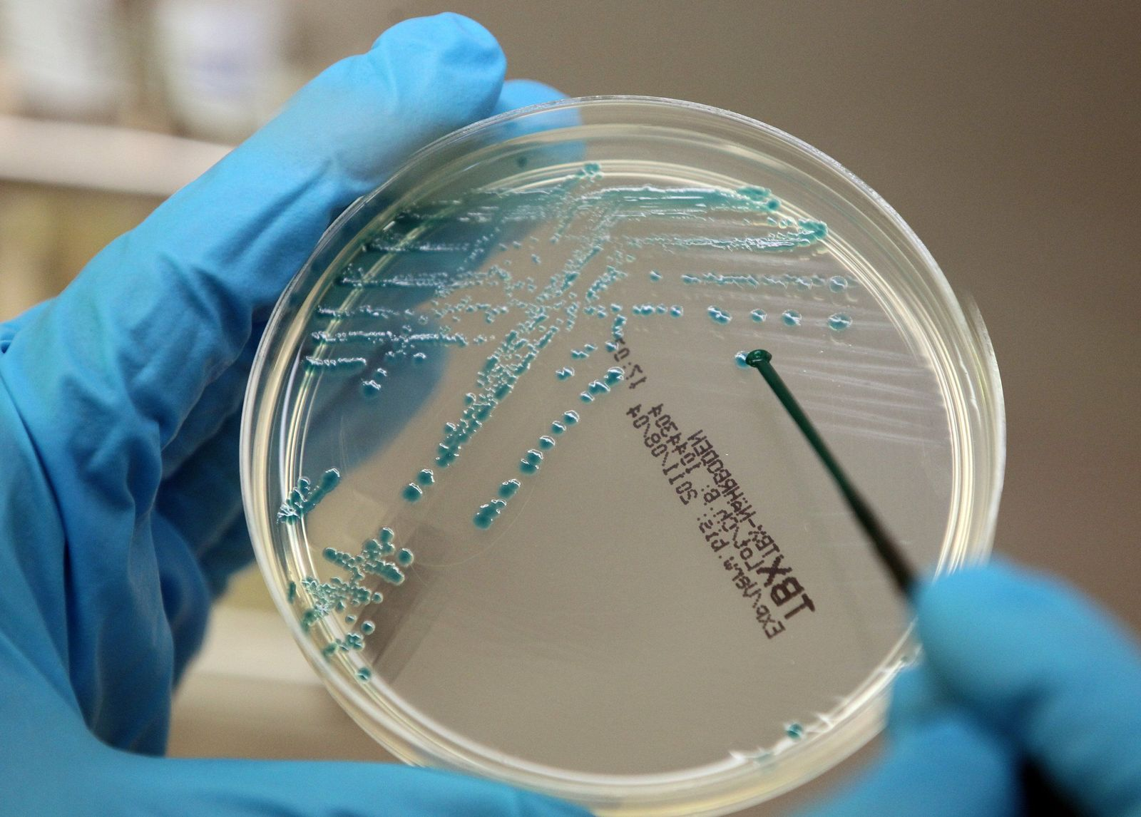 EHEC Erreger / Labor / Bakterien