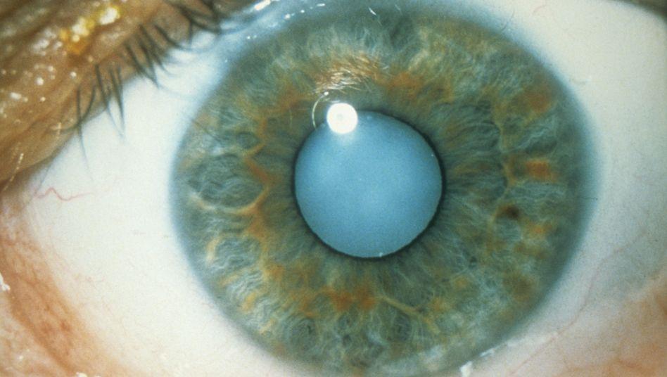 Grauer Star: Die eingetrübte, verhärtete Linse schränkt das Sehvermögen ein