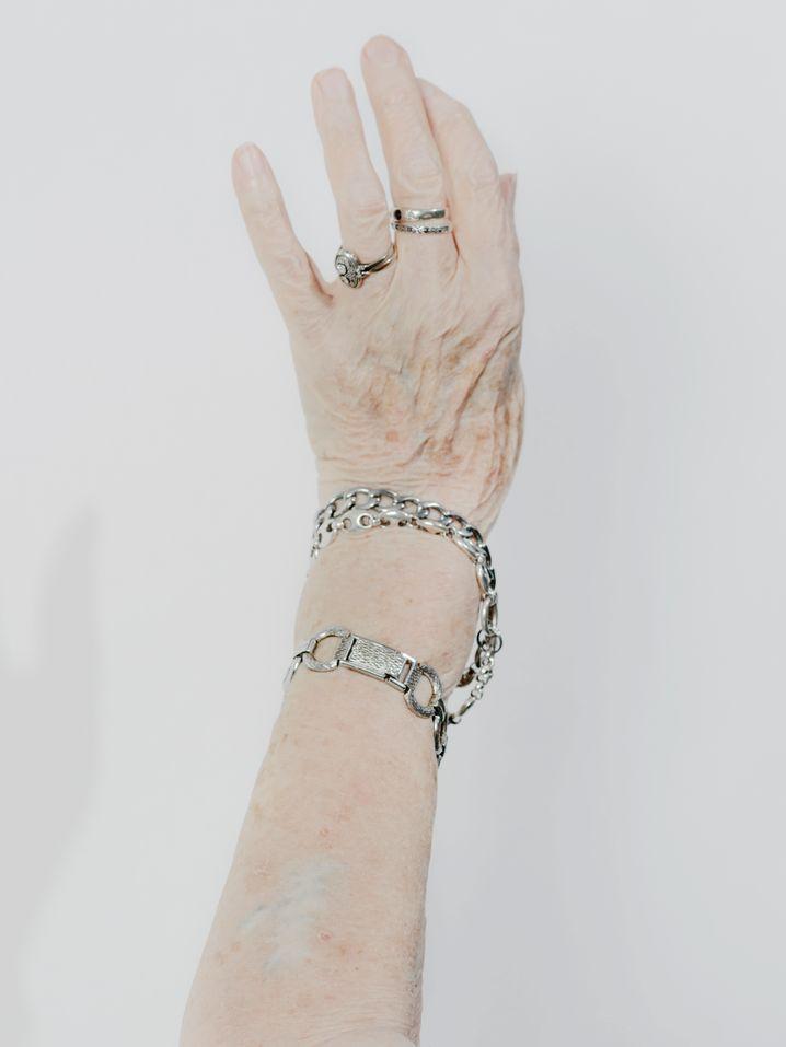 In den Achtzigerjahren ließ sich Esther Bejarano die Auschwitz-Tätowierung vom Arm entfernen