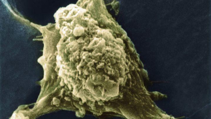 Analyse von Krebszellen: Erst der Gentest, dann die Chemo