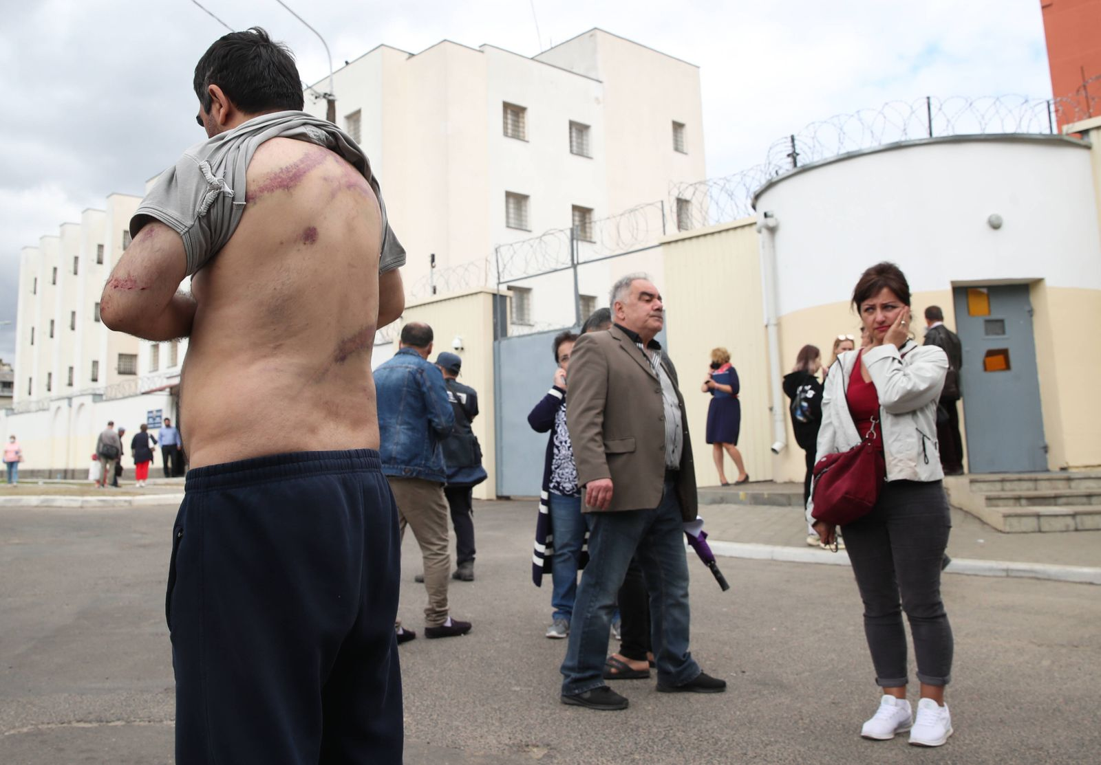 MINSK, BELARUS - AUGUST 13, 2020: Vardan Grigryan, detained during a mass protest, lifts his shirt to show injuries afte