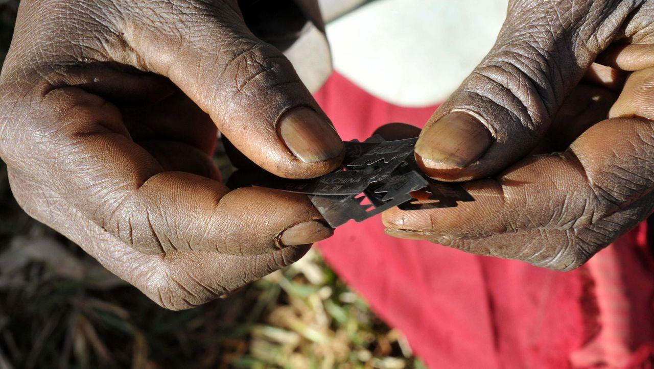 Sudan verbietet Genitalverstümmelung - neun von zehn Mädchen betroffen
