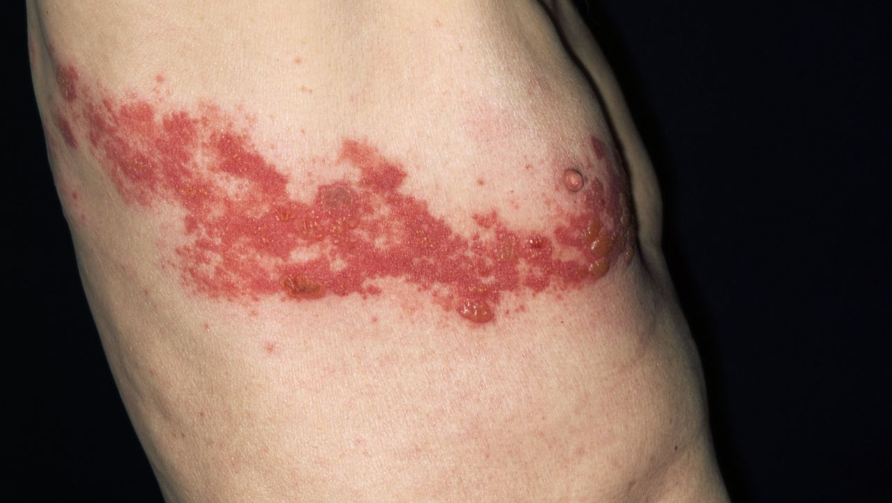 Gürtelrose: Schmerzhafter Ausschlag durch Varicella-Zoster-Viren - DER SPIEGEL