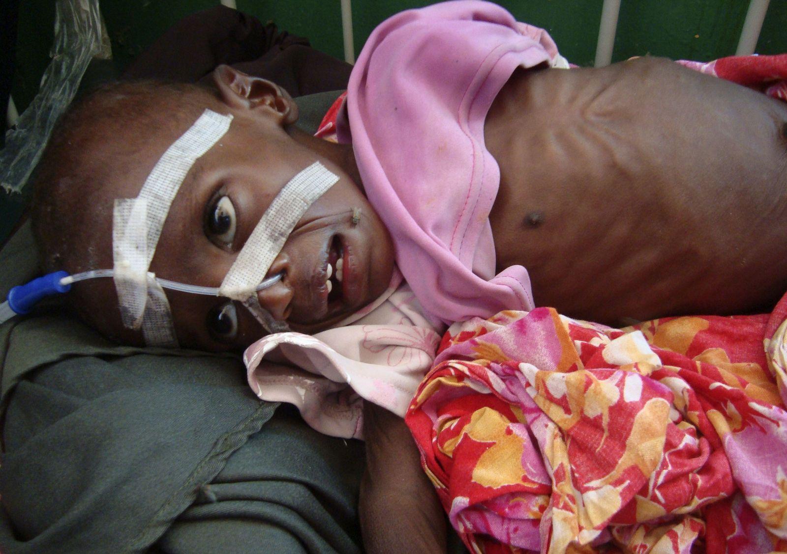 Somalia / Hungersnot