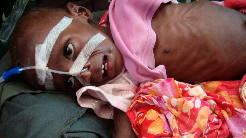 Unterernährtes Kind (in Somalia, Juli 2011): Der Kampf gegen den Hunger ist noch längst nicht gewonnen - zeigt aber auch Erfolge.
