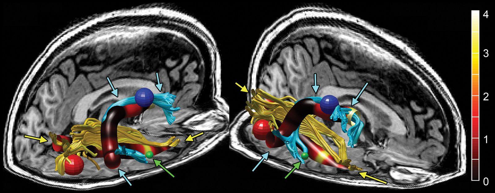 EINMALIGE VERWENDUNG Grafik/ Gehirn/ Atlas