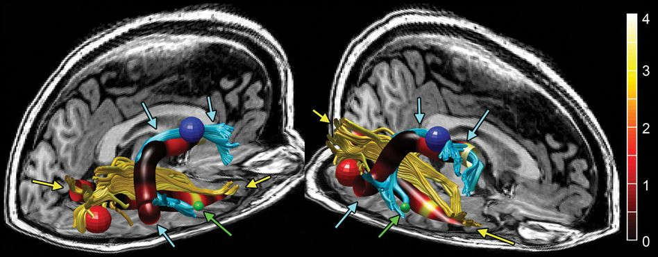 Tomografie-Aufnahme: Auffälligkeiten bei Nervenstrang Fasciculus arcuatus (blau mit Pfeilen)