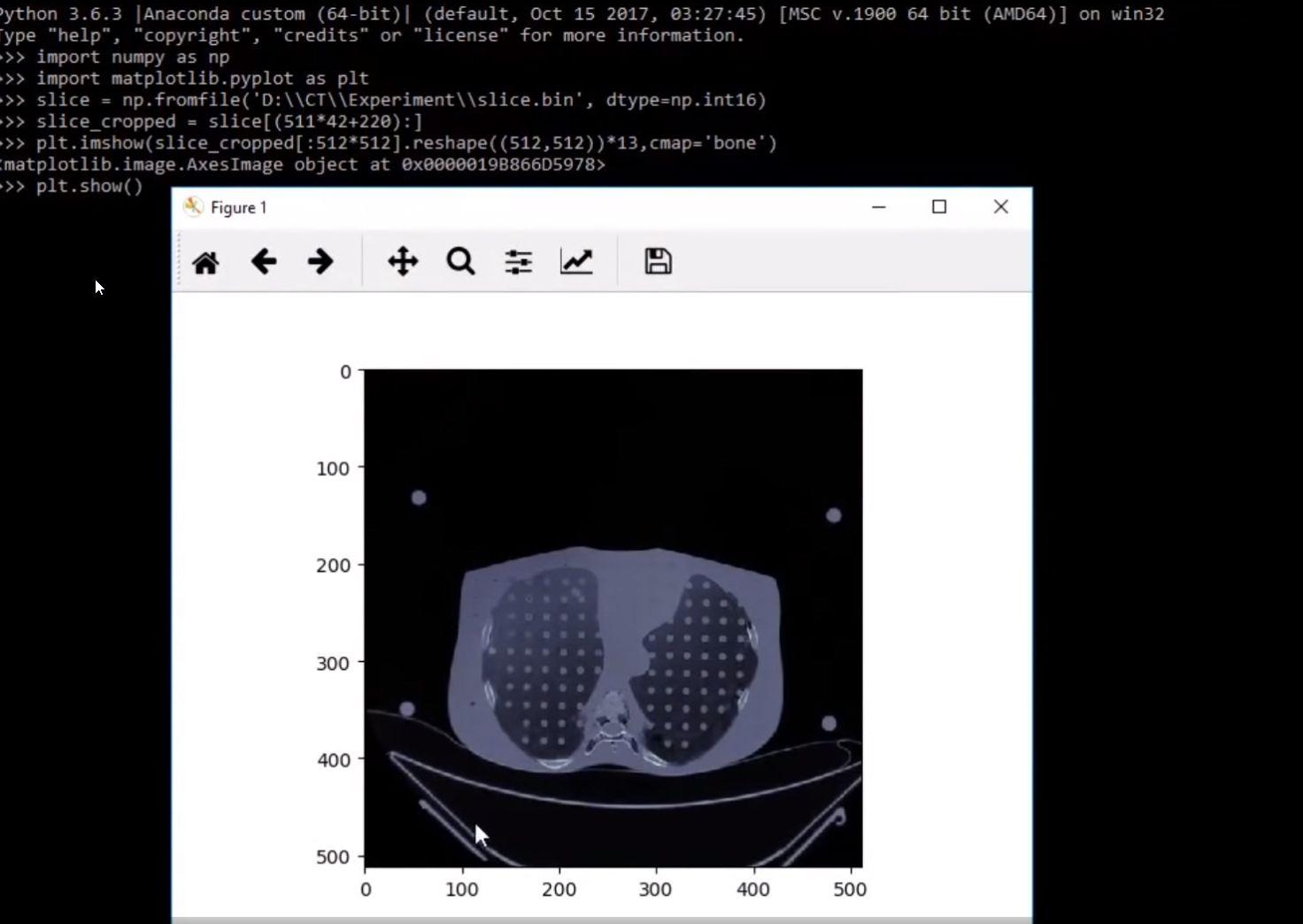 NUR ALS ZITAT Screenshot Manipulation von CT-Scans