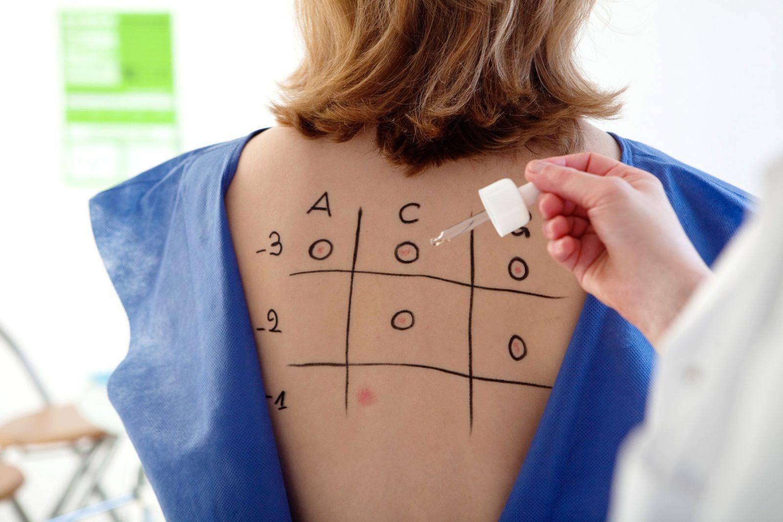 NICHT MEHR VERWENDEN! - Symbol / Allergien / Allergietest / Hauttest