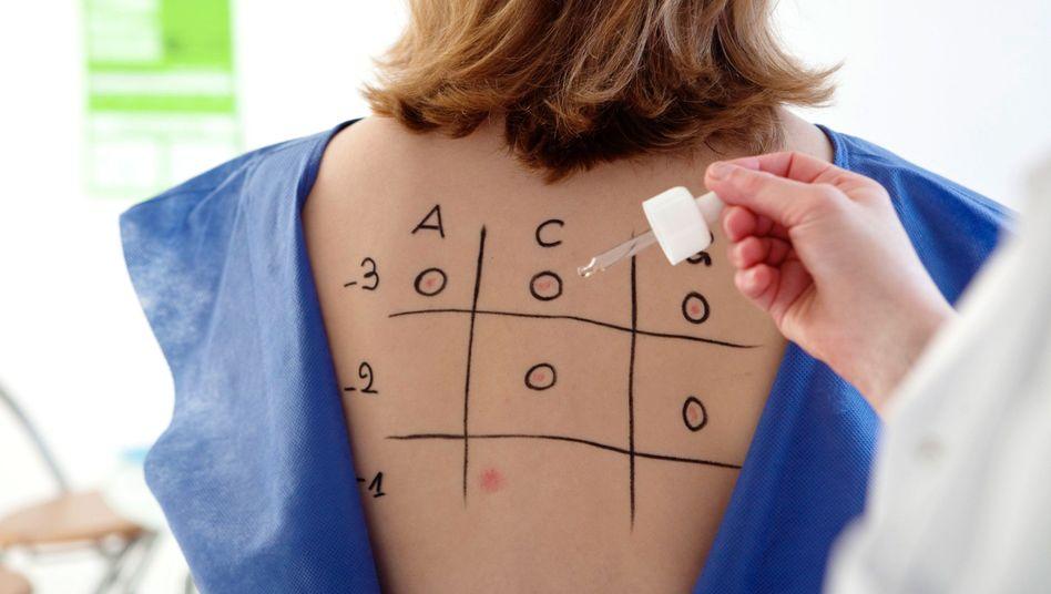Allergietest: Bei Allergien gegen Haustaub, Pollen oder Tierhaare kommt meistens der Pricktest zum Einsatz