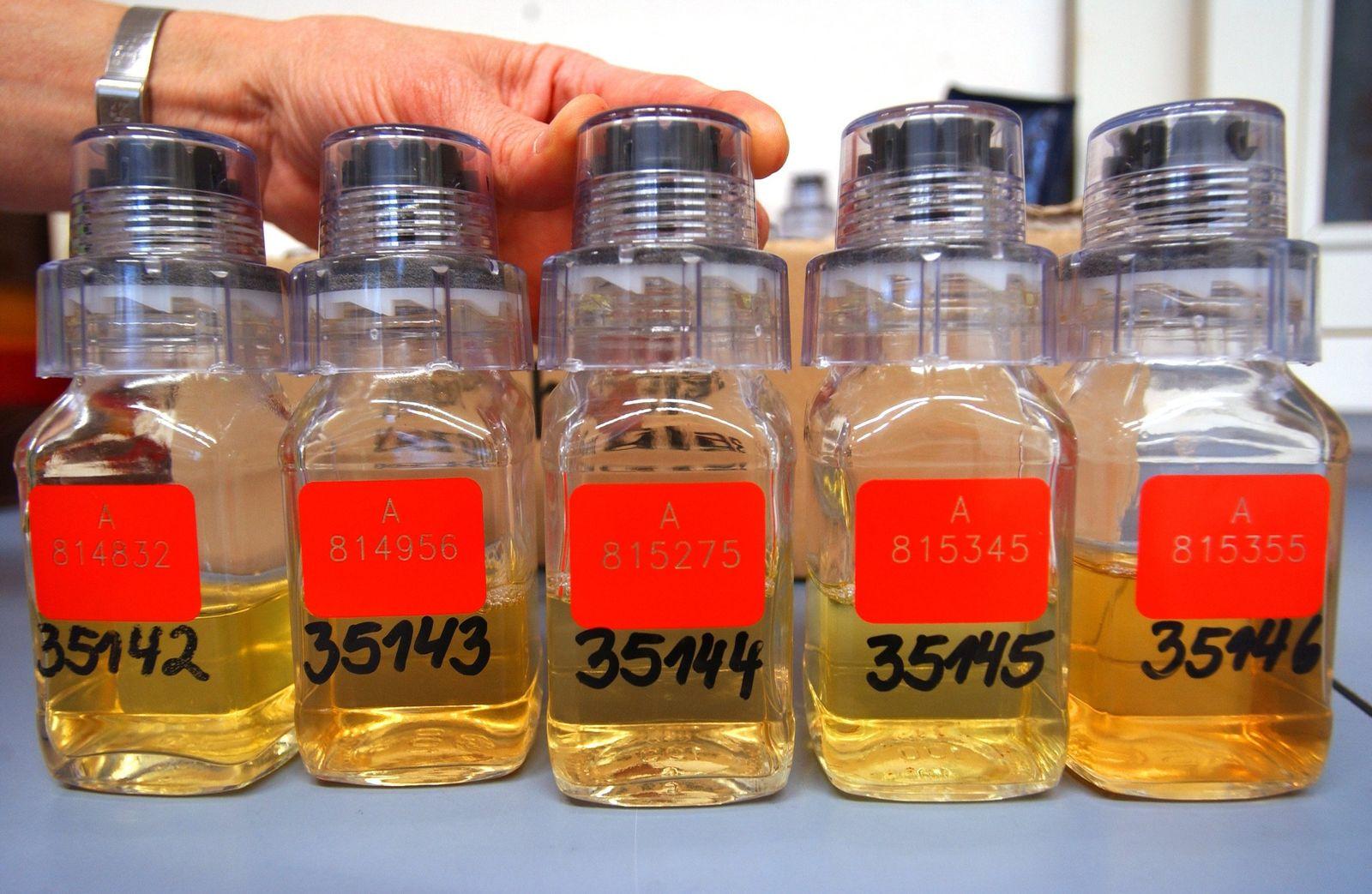 Löcher im Dopingtest-System