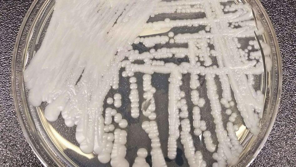 Erreger Candida auris in Petrischale