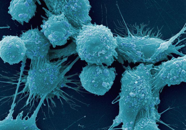 Krebszellen: Empfindlicher bei Hungerstress als normales Gewebe