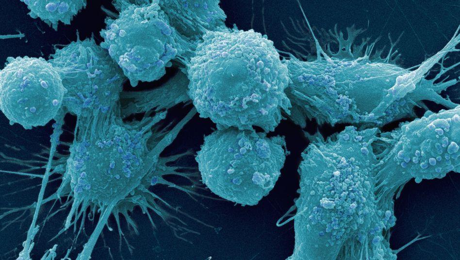 Krebszellen: Mit dem Alter steigt das Tumorrisiko