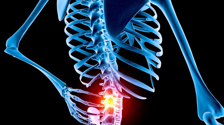 Rückenschmerzen: Haben die Menschen die richtigen Bewegungen verlernt?