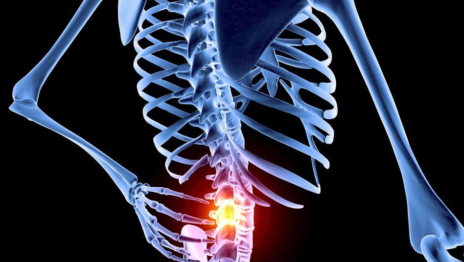 Schwachstelle Bandscheibe: Verletzungen an den Stoßdämpfern der Wirbelsäule sind schmerzhaft und oft langwierig