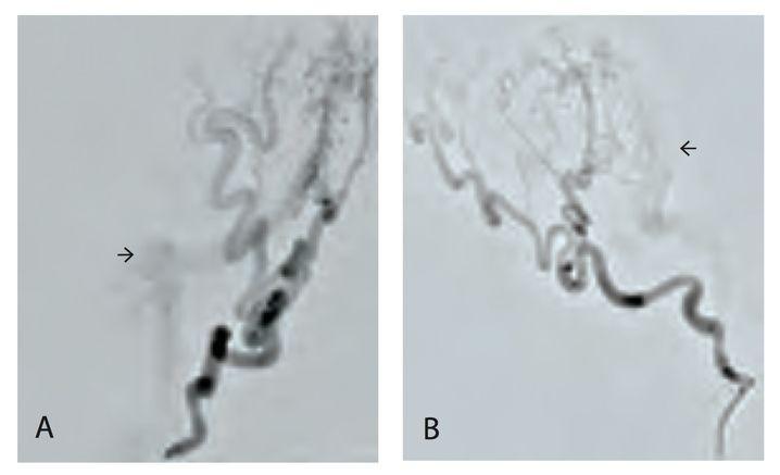 Beide Bilder zeigen dunkel die Hinterhauptsarterie (Bild A von vorne, Bild B von der Seite). Die Pfeile deuten jeweils auf den nur unscharf zu erkennenden Sinus sigmoideus, in den das Kontrastmittel über zahlreiche kleine Fistelverbindungen gelangt. Damit ist die Verdachtsdiagnose Durafistel bestätigt.