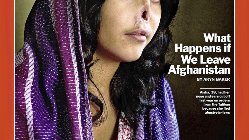 Grausame Verstümmelung: Ein Porträt bewegt die USA