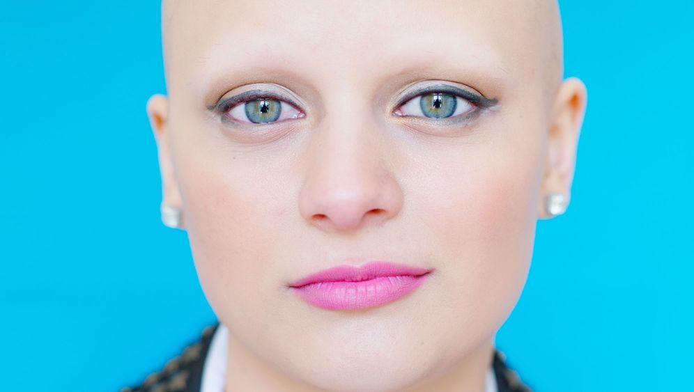 Haarausfall: Zwölf Frauen, die daran leiden