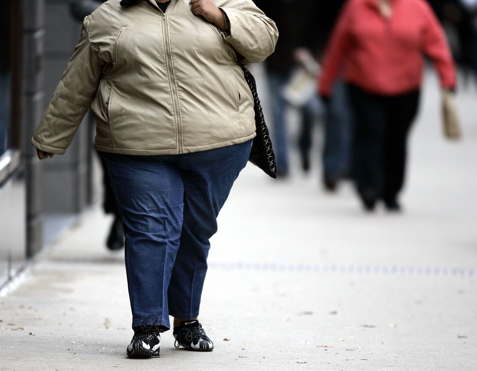 Fettleibigkeit / Übergewicht / Dick