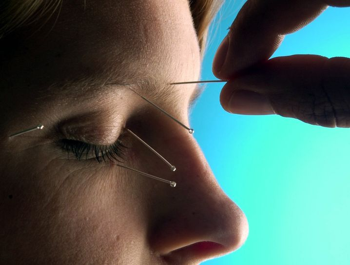 Akupunktur: Kassenleistung nur bei Rückenschmerzen und Arthrose