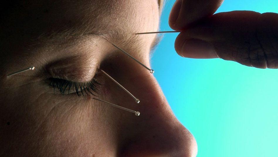Akupunktur: Die Nadeln werden mehrere Minuten in der Haut gelassen
