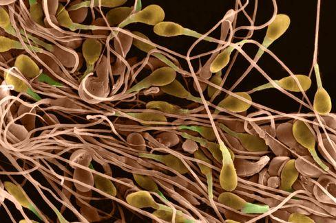 Menschliches Sperma: Beweglichkeit und Menge korreliert mit Intelligenz