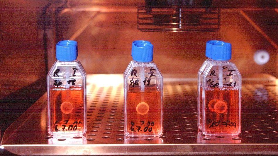 Neues Transplantationsgesetz: Organspender werden abgeschreckt