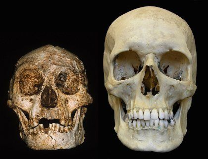 "A brain the size of an orange: Was the ""hobbit"" merely a deformed human?"