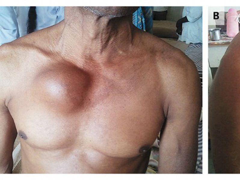 schwellung unter der rechten brust