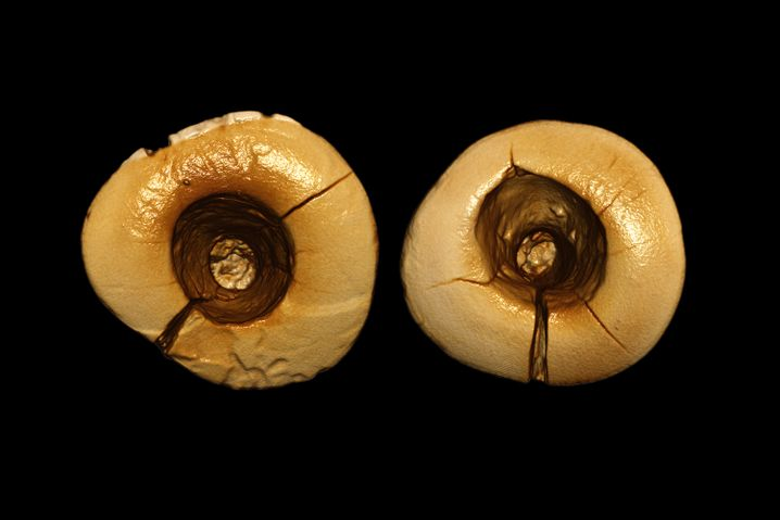 Ausgeschabte Zähne