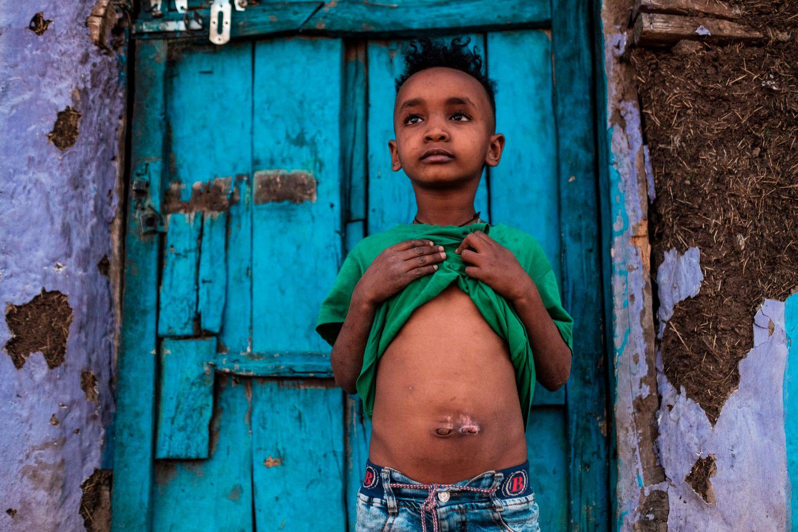 TOPSHOT-ETHIOPIA-TIGRAY-CONFLICT-UNREST