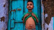 »Hunderttausende könnten verhungern«